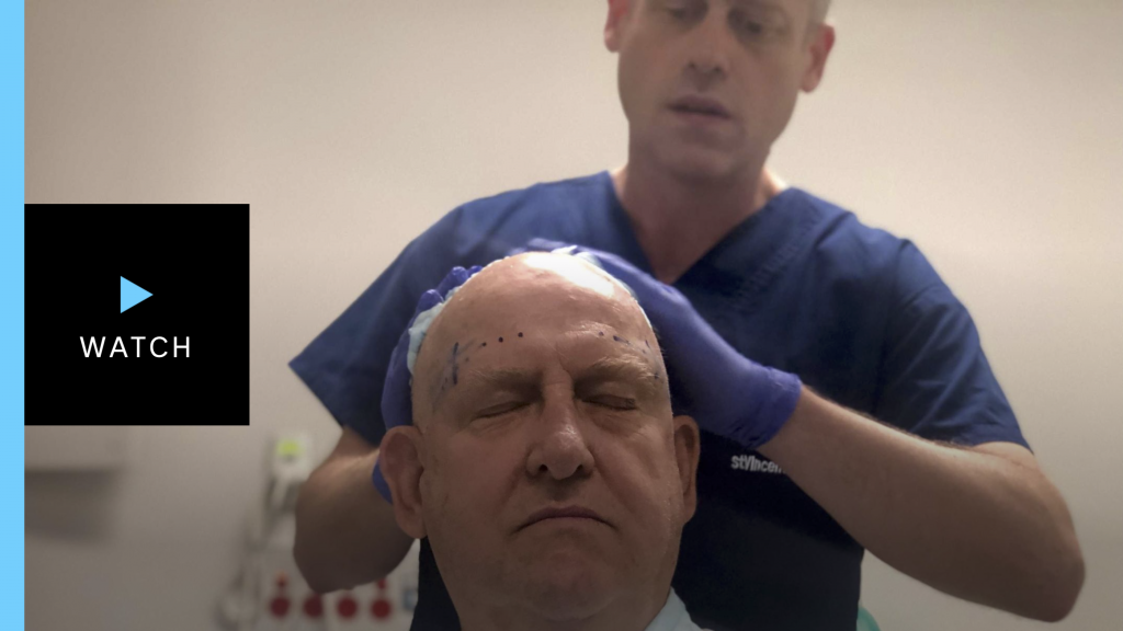 Tremor Cure - Incisionless brain surgery